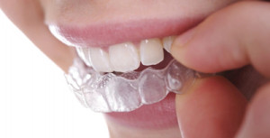 clear_aligners