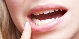 gum_diseases