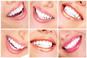 smile_design