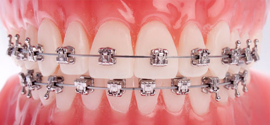 Dental Bracers